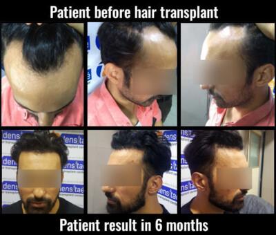 vinod-hair transplant results in pune